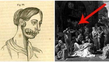 6 enfermedades antiguas POrtada